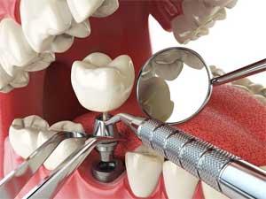 Зубные имплантаты против зубных мостов.