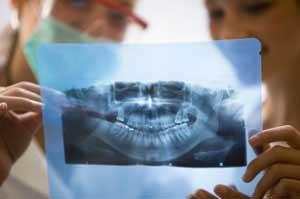 Апикоэктомия: когда лечение корневых каналов не удается