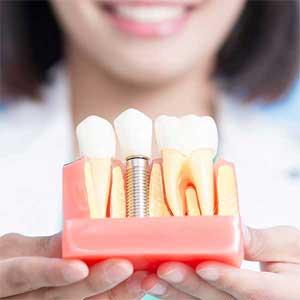 Мне удаляют зубы — когда я смогу установить импланты?