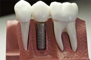 Основные признаки и симптомы воспаления зубного импланта