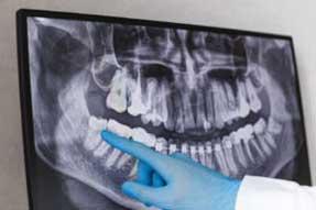 Что делать после удаления зубов мудрости